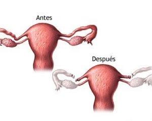 Diagrama del antes y despuès de la esterilización femenina