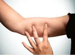 Implante subdérmico colocado en el brazo