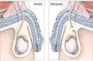 Diagrama que muestra el antes y despuès de la esterilización masculina