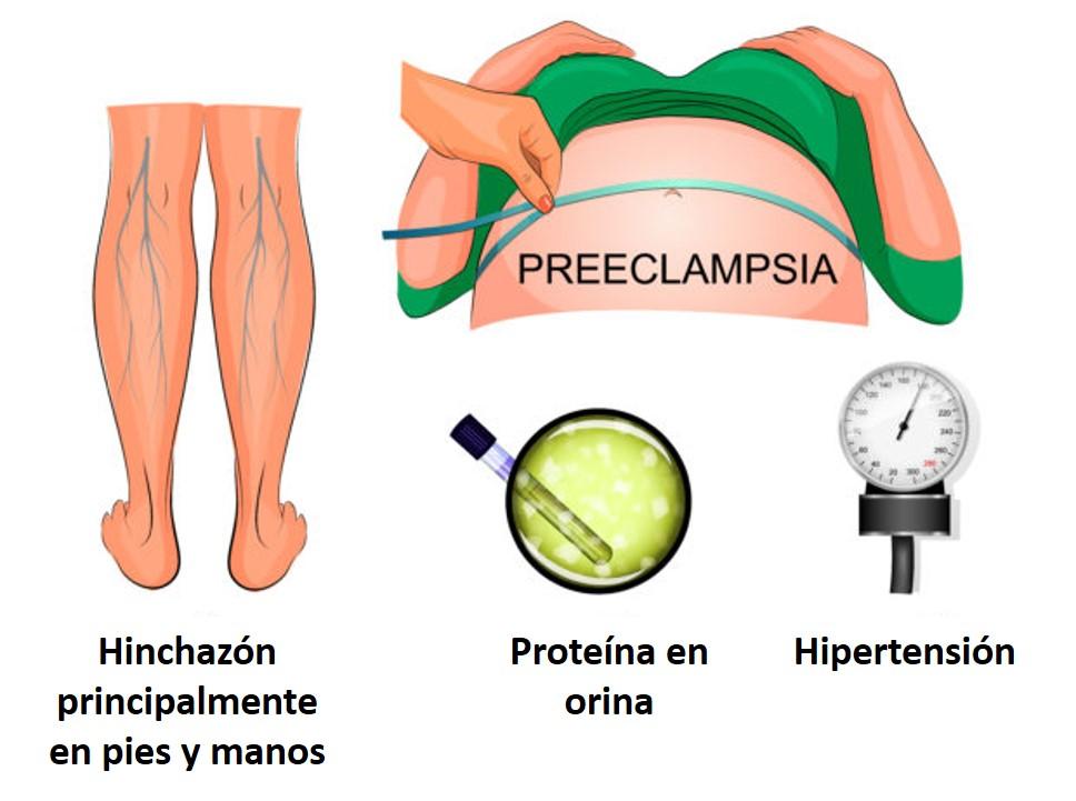Síntomas de la preeclampsia, un estado de hipertensión en el embarazo