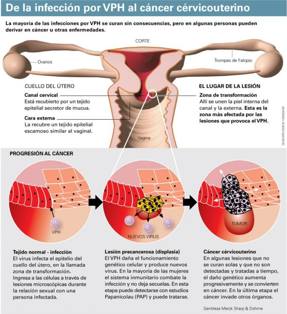 Daños que produce el VPH en el cérvix