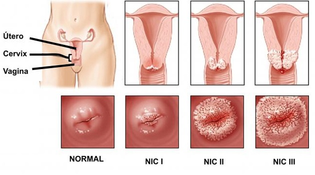 contagio VPH, ¿Cómo evitar el contagio de VPH? | Consejos para prevenirlo