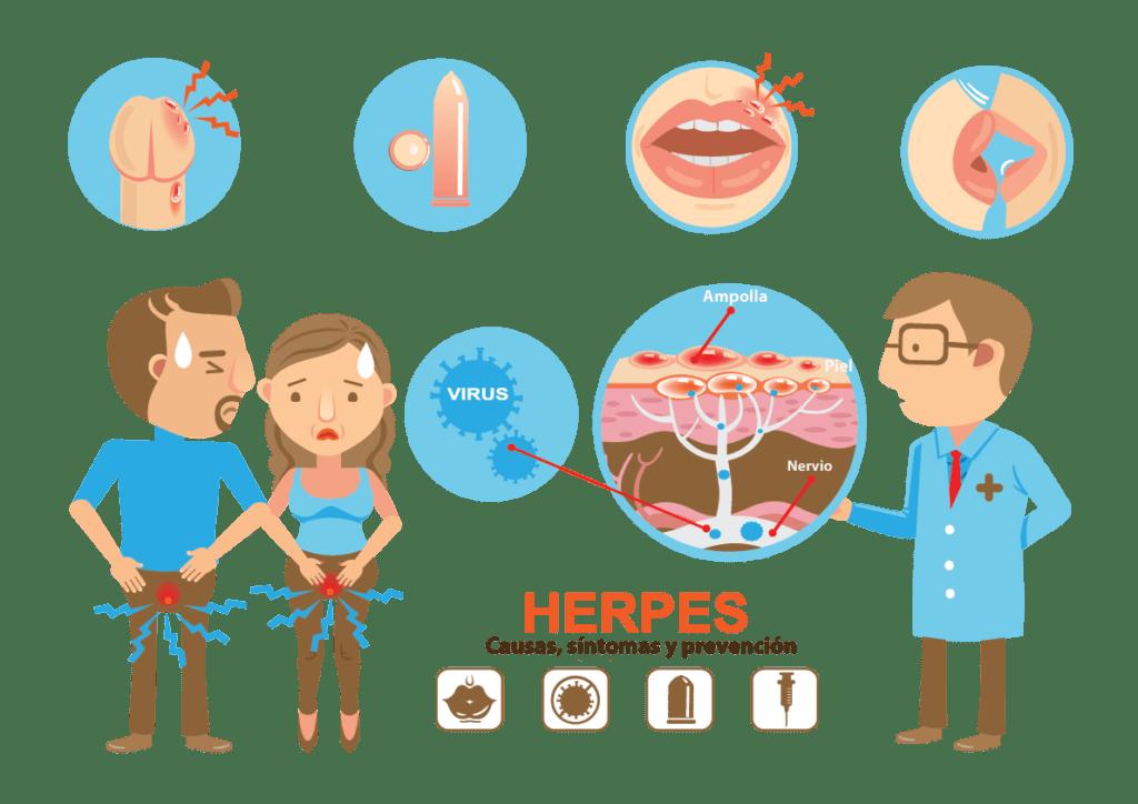 , Herpes Genital