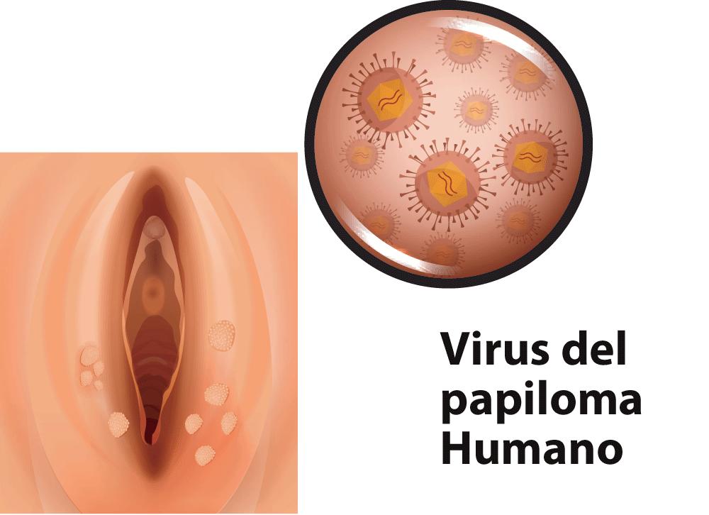 verrugas por VPH