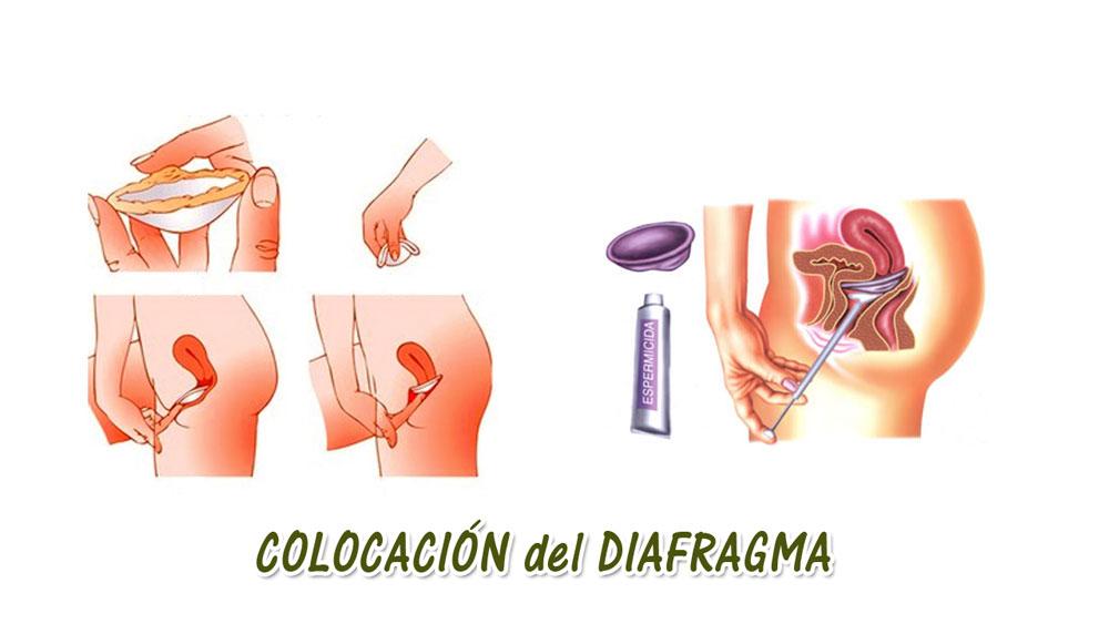 Como se coloca el diafragma